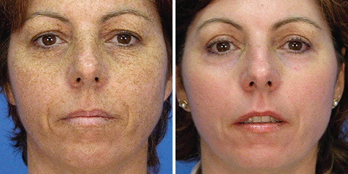 LASER CARBON FACIAL - REDUCE BROWN SPOTS, FRECKLES, WRINKLES, PORES. ONE TREATMENT $89 (REG. 119)