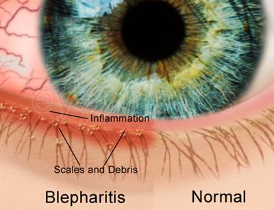 how to clean eyes for blepharitis