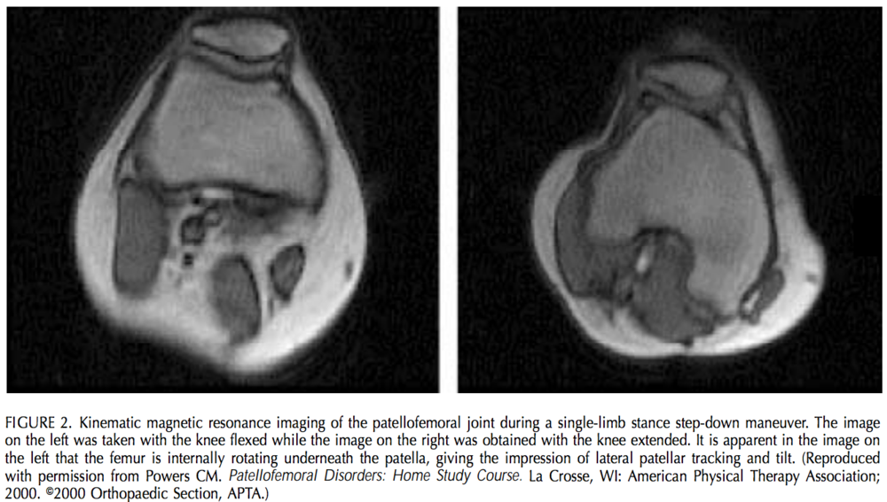 This image was taken from an article published by Chris Powers, PhD, PT, JOSPT 2003