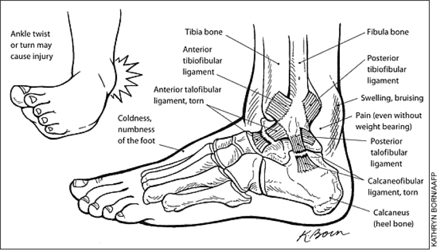 The two most commonly injured lateral ankle ligaments are the anterior talofibular ligament and the calcaneofibular ligament, pictured above.