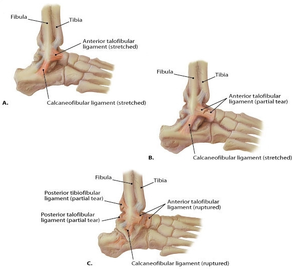 Detailed images of ATF and CF ligaments at the lateral ankle.
