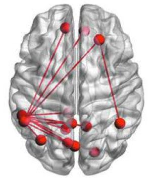 (Reading improves the brain connections in red. Source: Psychology Today.)