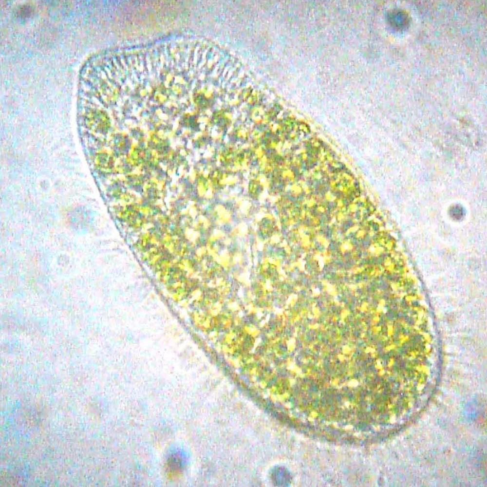 Parmecium bursaria (Bob Blaylock, en.wikipedia.org).