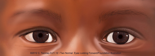 Image of child's normal eyes, South Africa, Twomey