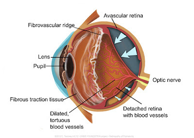 Medical illustration for African ocular project.