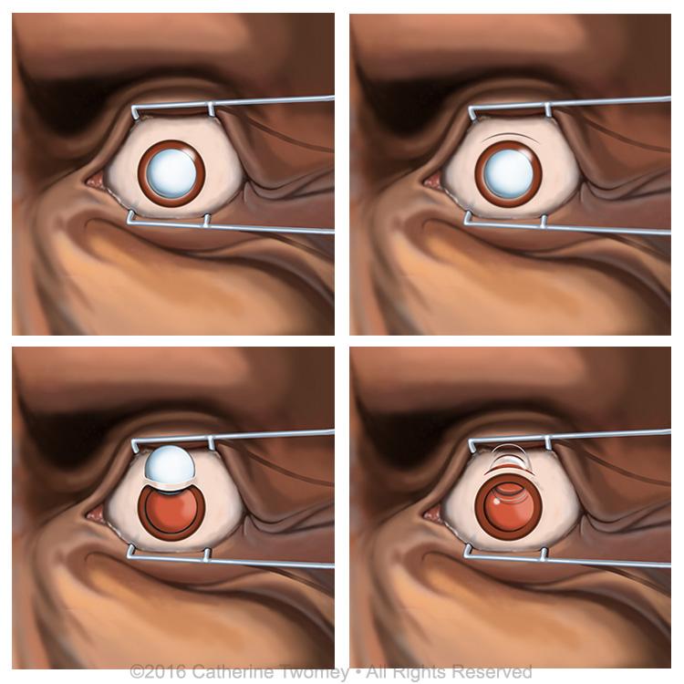 cataractsurgcomp.jpg
