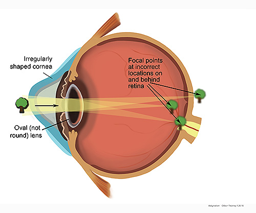 astigmatismeye.jpg