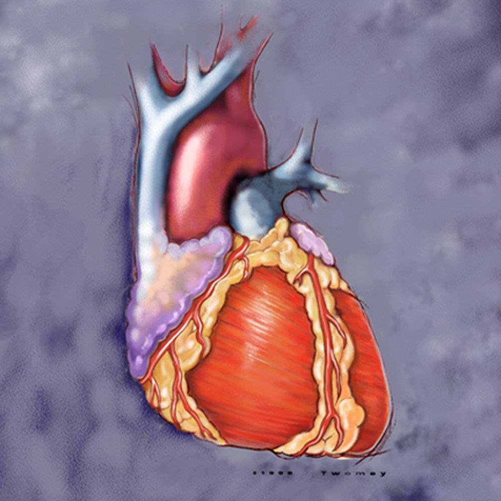 cardioheartbasic1500.jpg