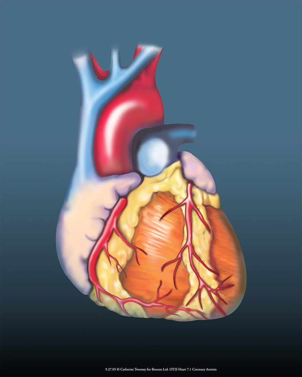 heartcoronaries1500.jpg