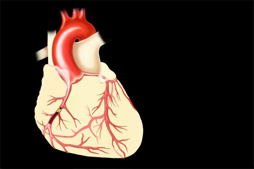infarct1500.jpg