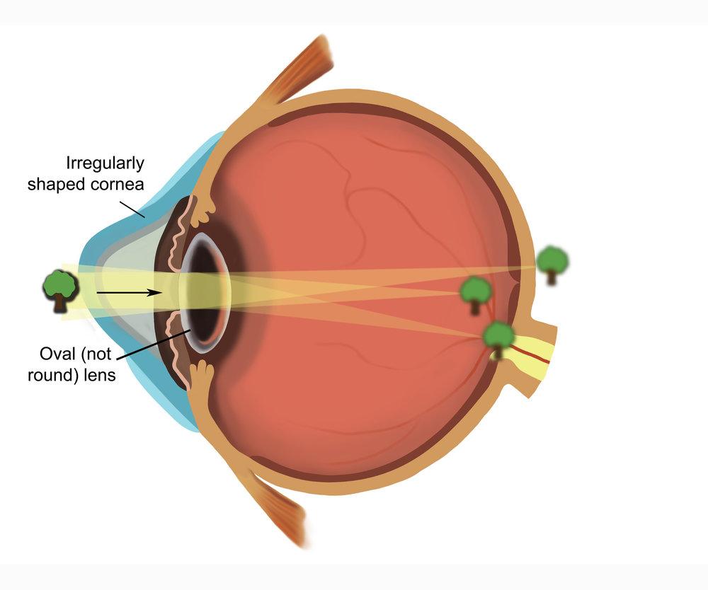 astigmatismeye21500.jpg