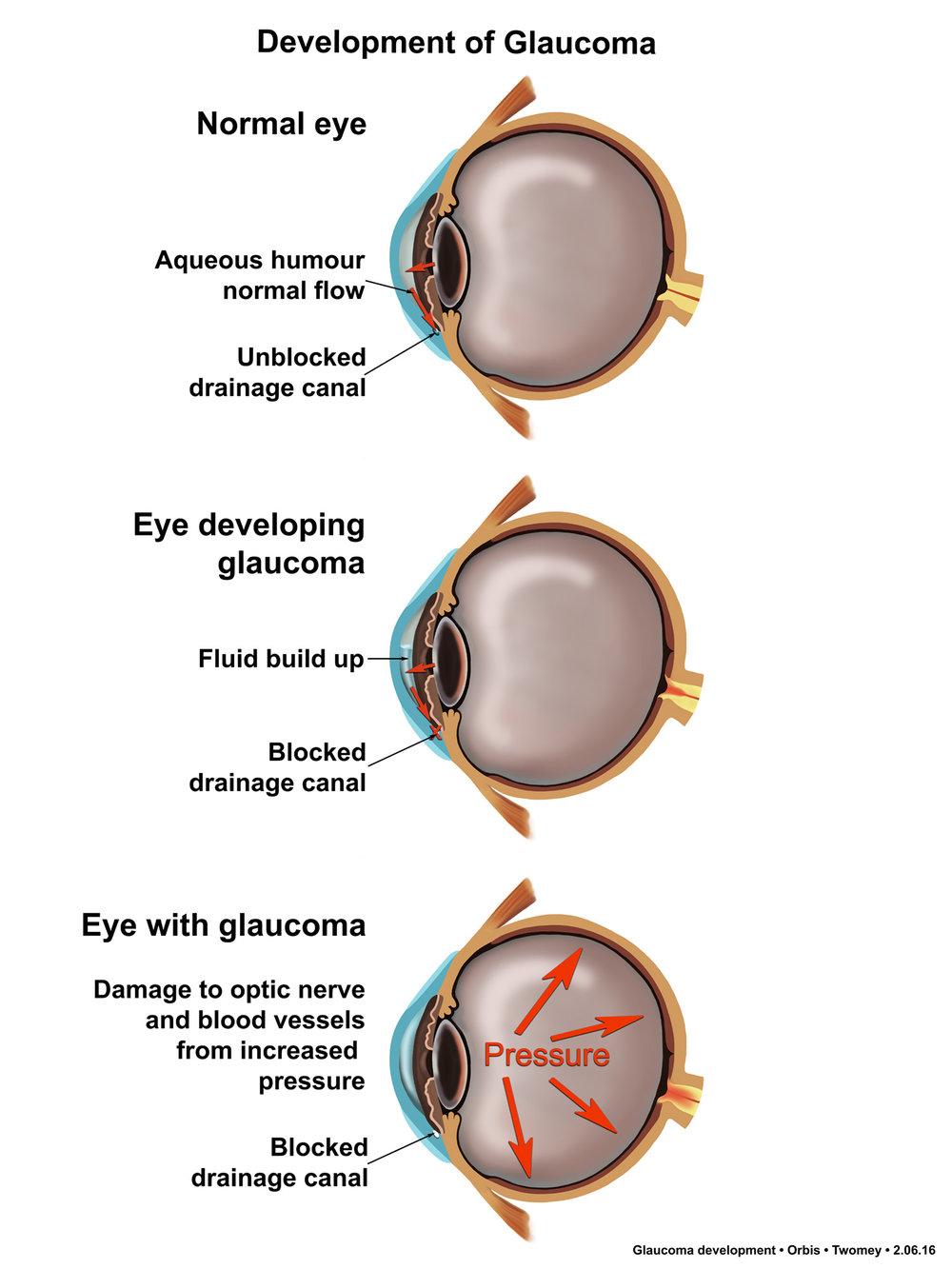 glaucomaforming1500.jpg