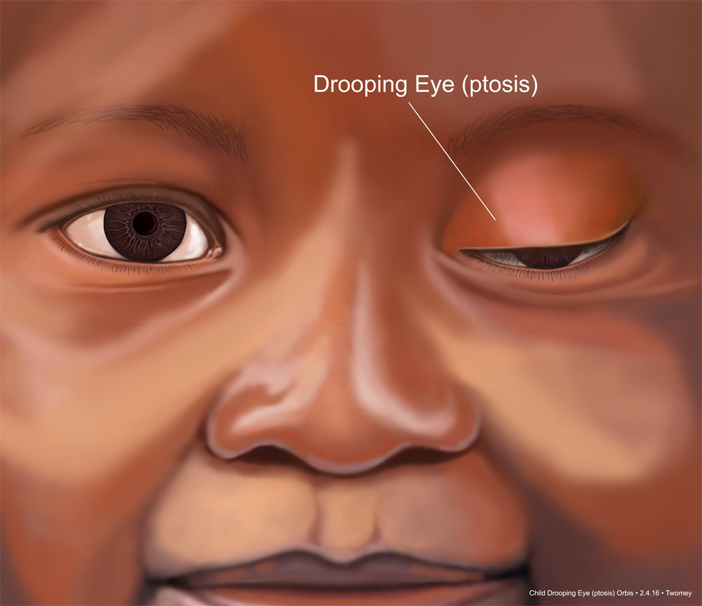 childseyesptosis1500.jpg