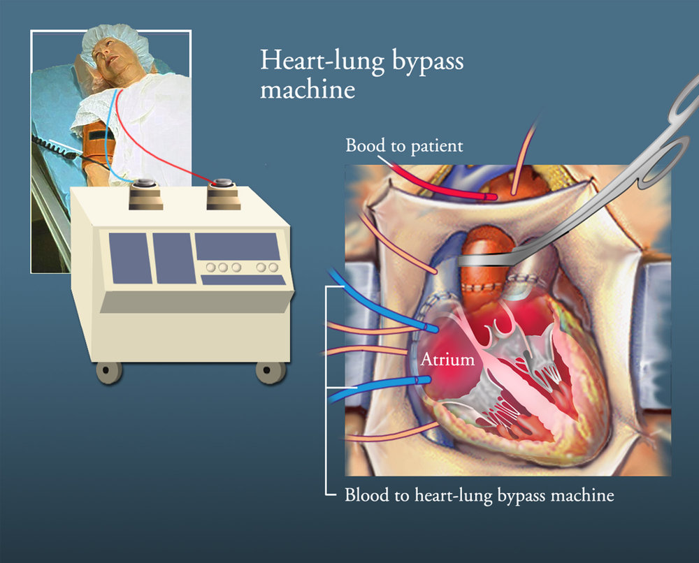heartcolorbypass1500.jpg
