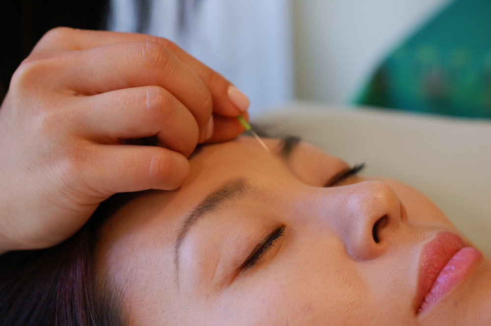 Acupuncture needles produce collagen production