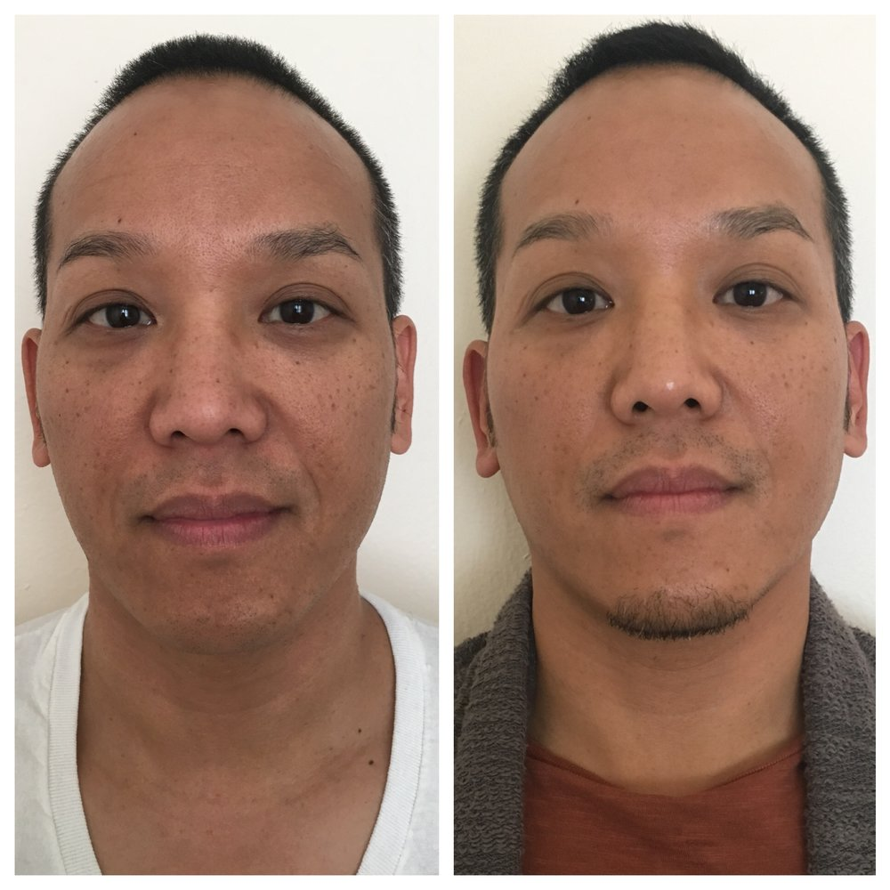 Before & After 4 Weekly Facial Rejuvenation 'Radiance' Treatments  This patient's main concern was the dark circles under his eyes. By re-balancing energy flow in his body/face + a few lifestyle adjustments on his part, significant improvement externally in the dark circles, plus the added benefit of a more clear complexion, and reduced forehead/smile lines. Internally, he felt improvement in digestion, energy level, stress reduction, better sleep and even reduced snoring!