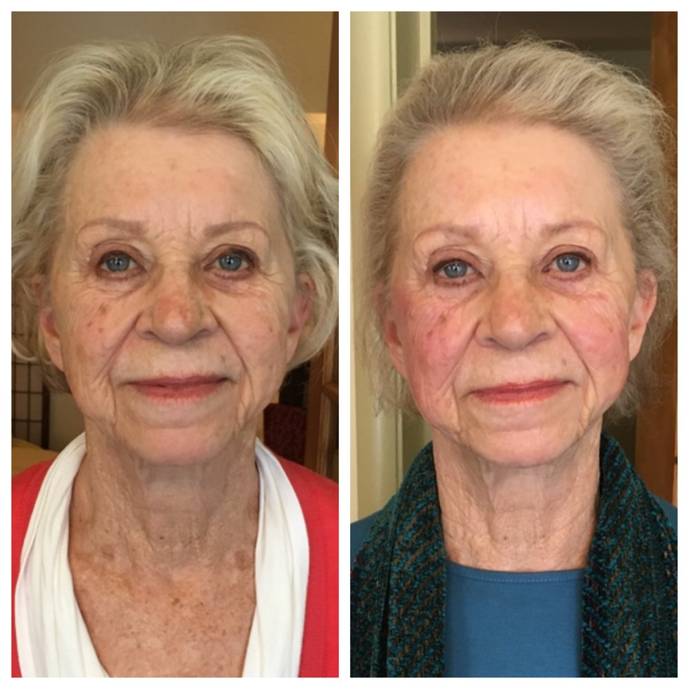 Before & After 3 Facial Rejuvenation Acupuncture Treatments  At 85 years old, this vibrant and active patient received only three facial rejuvenation sessions over a 6 month time period with regular wellness acupuncture treatments in between.  Her main priority was staying healthy and balanced, so frequent acupuncture visits in combination with the occasional facial rejuvenation appointment produced increasingly positive results.