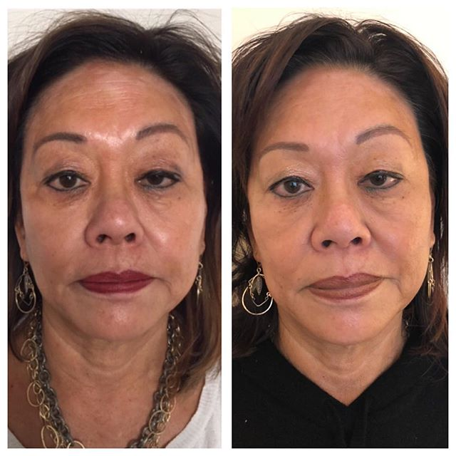 This client's main complaint was patchy skin discoloration/dryness due to eczema. After 12 weekly treatments, her complexion has almost completely evened out and regained moisture. I also notice less puffiness and smoothing of fine lines. She even says she feels comfortable not wearing makeup for the first time in years :) As we continue treatments, we see an improvement each week, which truly shows how with a little patience, faith, and effort, we are capable of healing ourselves from the inside out to naturally improve our appearance 🥰 . . . #facialrejuvenation #facialacupuncture #acupuncture #naturalbeauty #holistic #transformation #organic #glow #radiance #beauty #soundhealing #essentialoils #facial #skin #eczema #skincare #cupping #guasha #easternmedicine  #preventative #mindbodysoul #yoga #spirituality #love #healing #sanfrancisco #sf #bayarea #castro