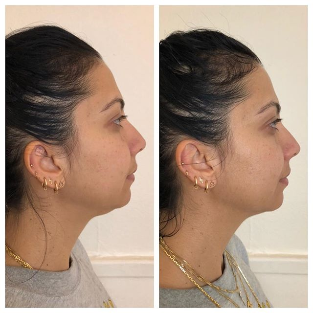 Uplift ✨ Before and after treatment to help lift this client's chin/neck area using acupuncture, sound healing tuning forks, and gua sha. Although this was an 'outward' concern, one of my main goals was to go 'inward' to lift this beauty's spirit as well 💗 . . . #facialrejuvenation #facialacupuncture #acupuncture #naturalbeauty #holistic #uplift #transformation #organic #glow #radiance #beauty #soundhealing #essentialoils #facial #skin #skincare #cupping #guasha #easternmedicine  #preventative #mindbodysoul #yoga #spirituality #love #healing #sanfrancisco #sf #bayarea #castro