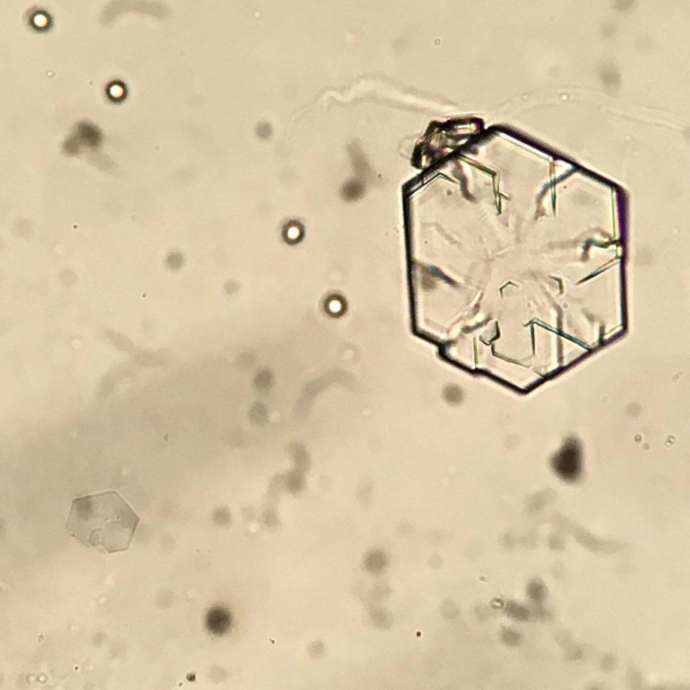 Cystine crystal 02 swissnephro Florian Buchkremer