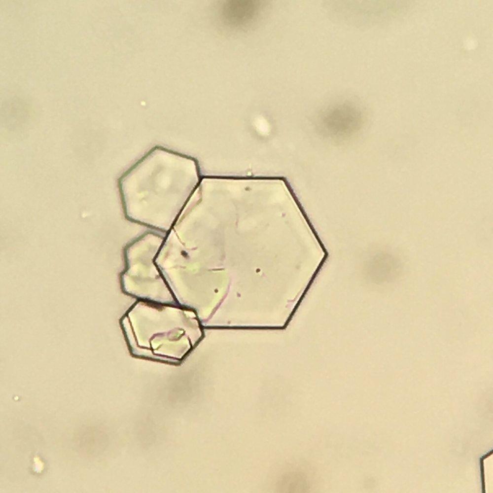 Cystine crystal 04 swissnephro Florian Buchkremer