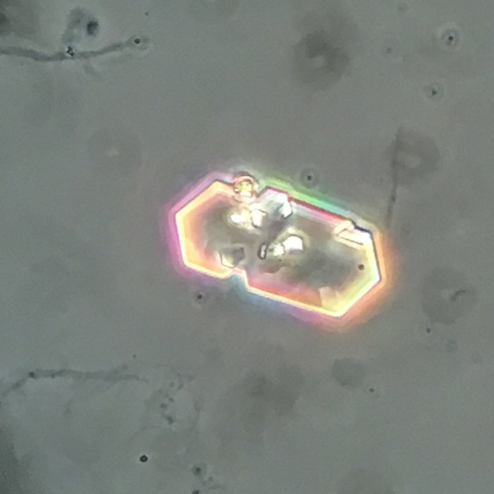 Cystine crystal 05 swissnephro Florian Buchkremer