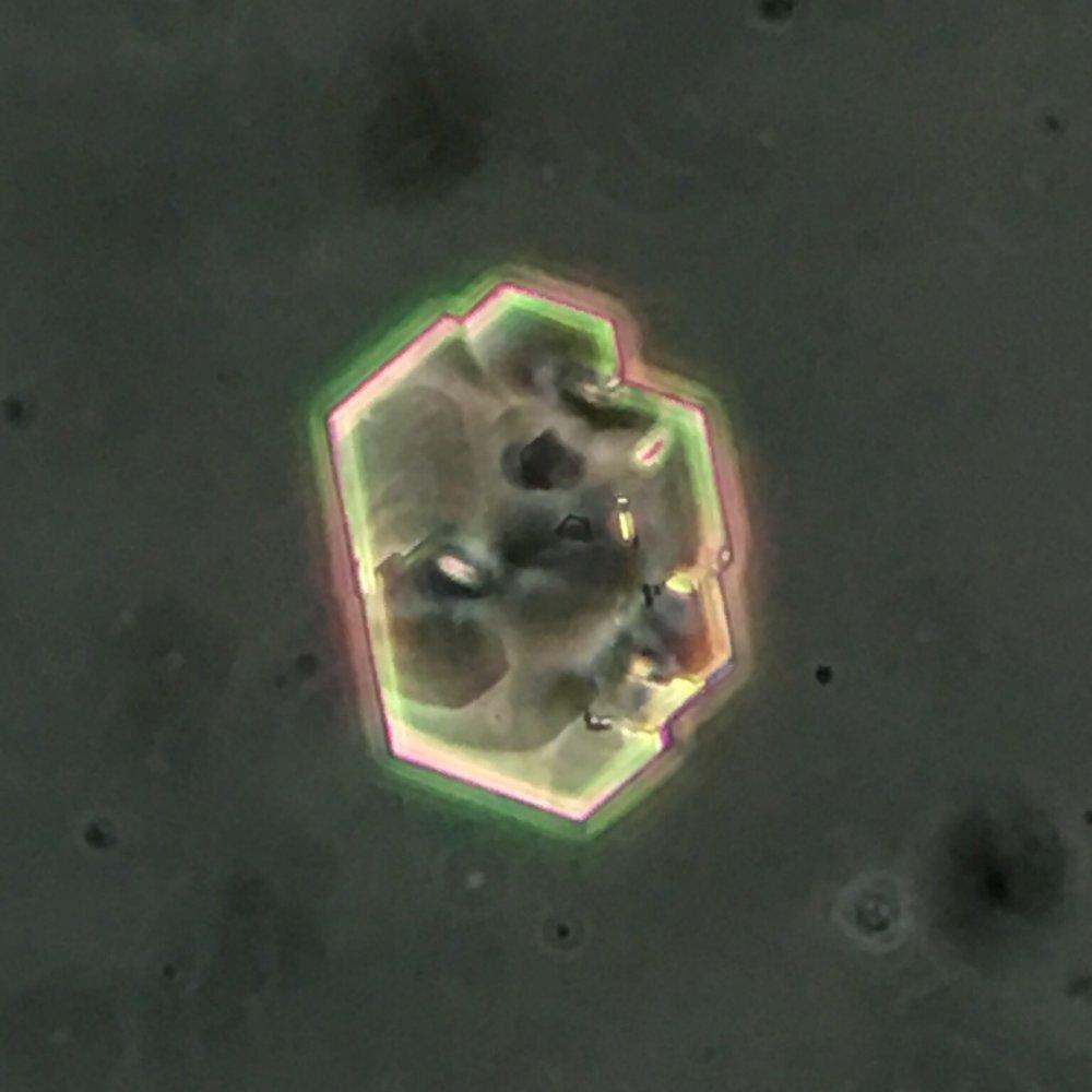 Cystine crystal 11 swissnephro Florian Buchkremer