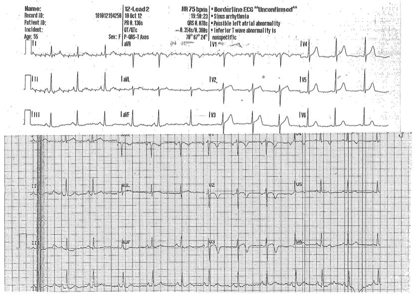 12-lead ECG (miniteach).png