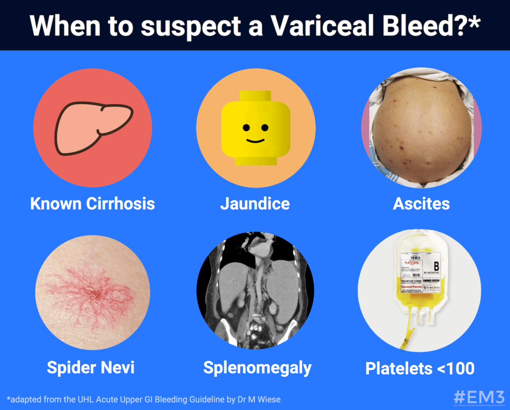 (Fig. 1) Features suggesting bleeding from varices