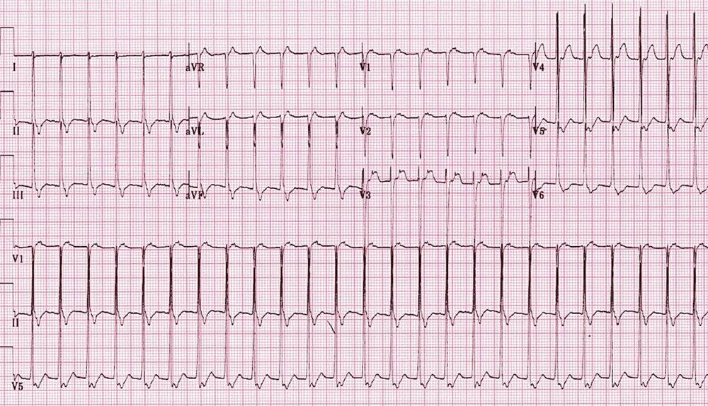 AVRT (ECG).jpg