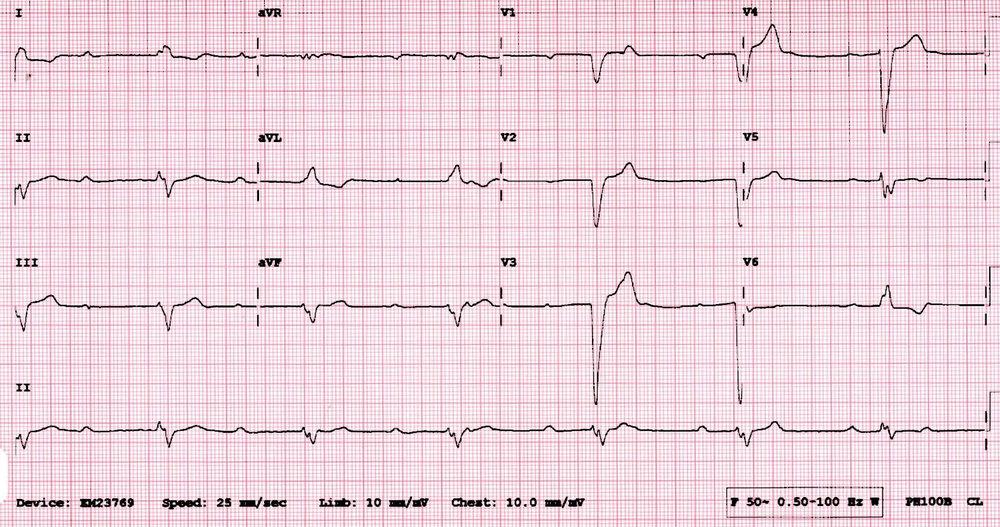 Bradycardia ECG (#SimBlog).jpg