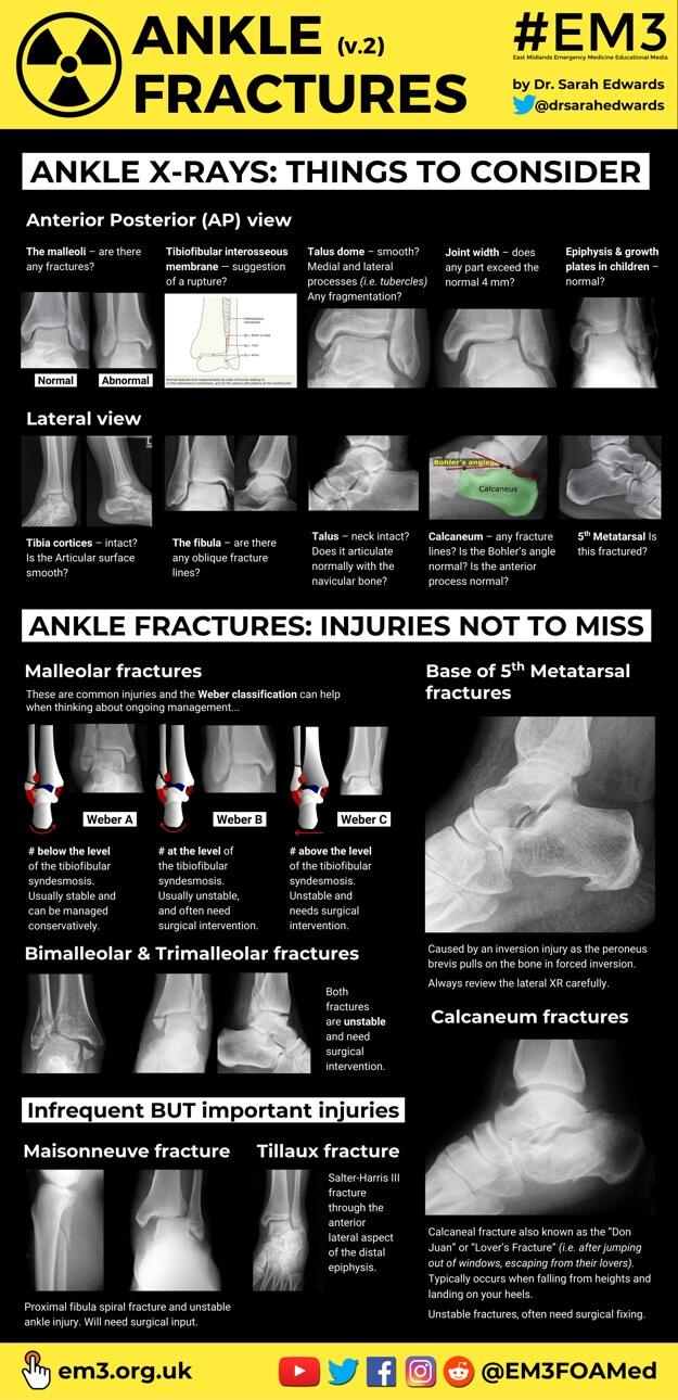 Ankle Fractures v.2 (thumbnail).jpg