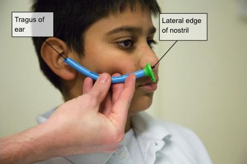 Nasopharyngeal airway (sizing landmarks demonstrated).jpg