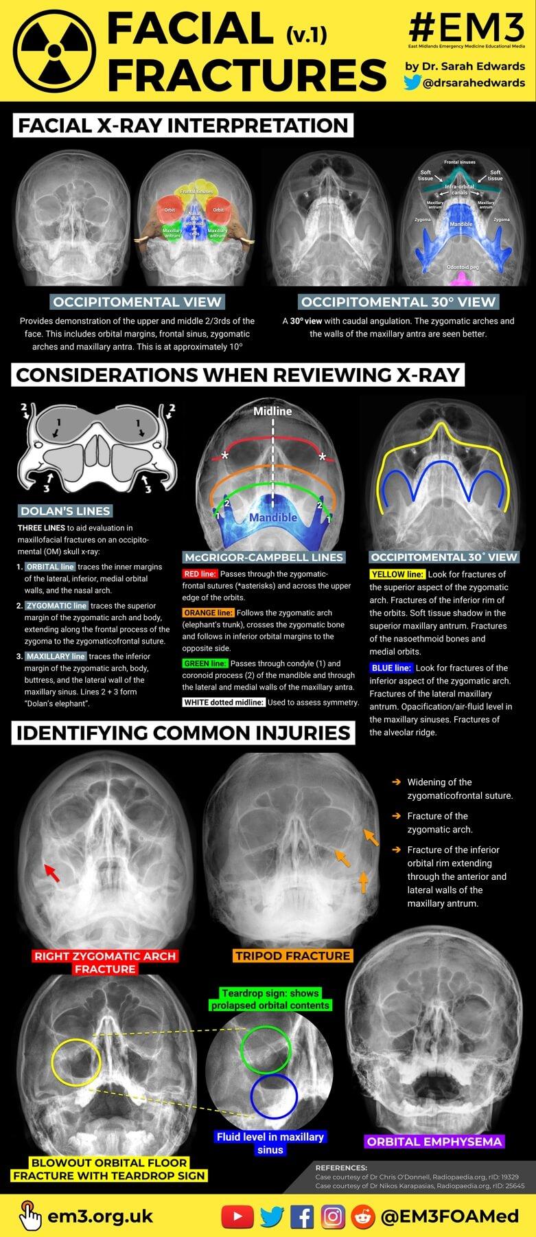 Facial Fractures poster - Dr Sarah Edwards (thumbnail).jpg