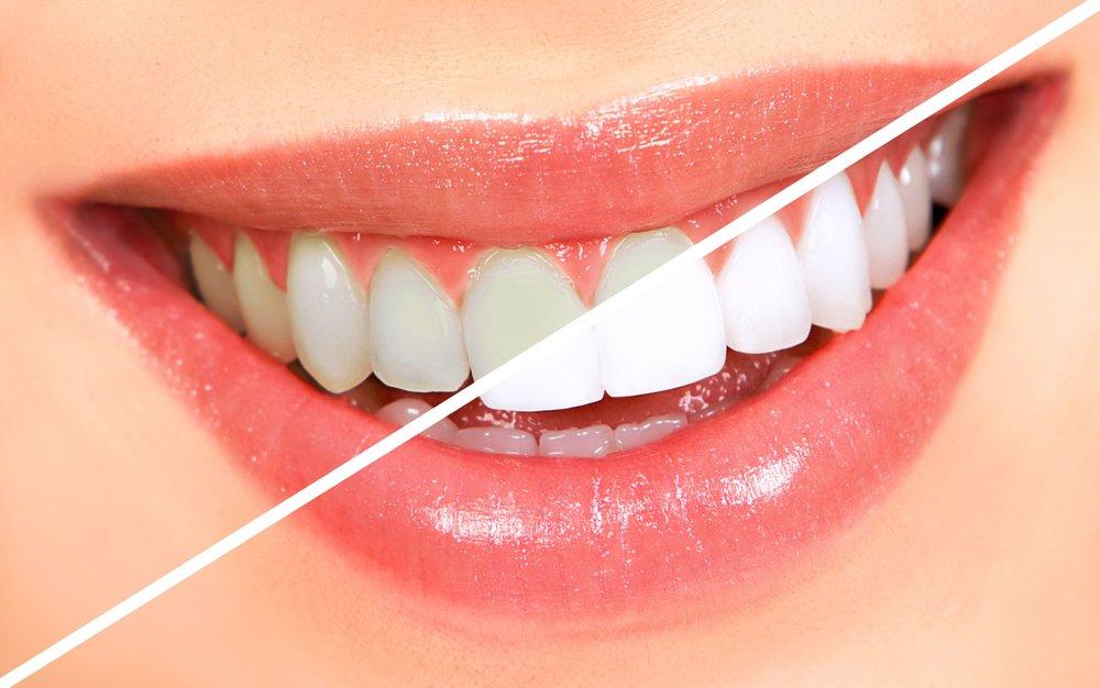 Dr. Craig Hanson, DDS, PC - Dental Teeth Bleaching - Value $400