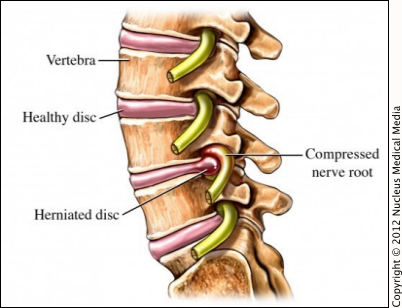 Herniated-disk.png