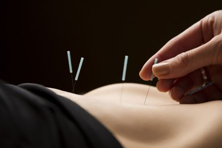 acupuntura-barcelona-les-corts