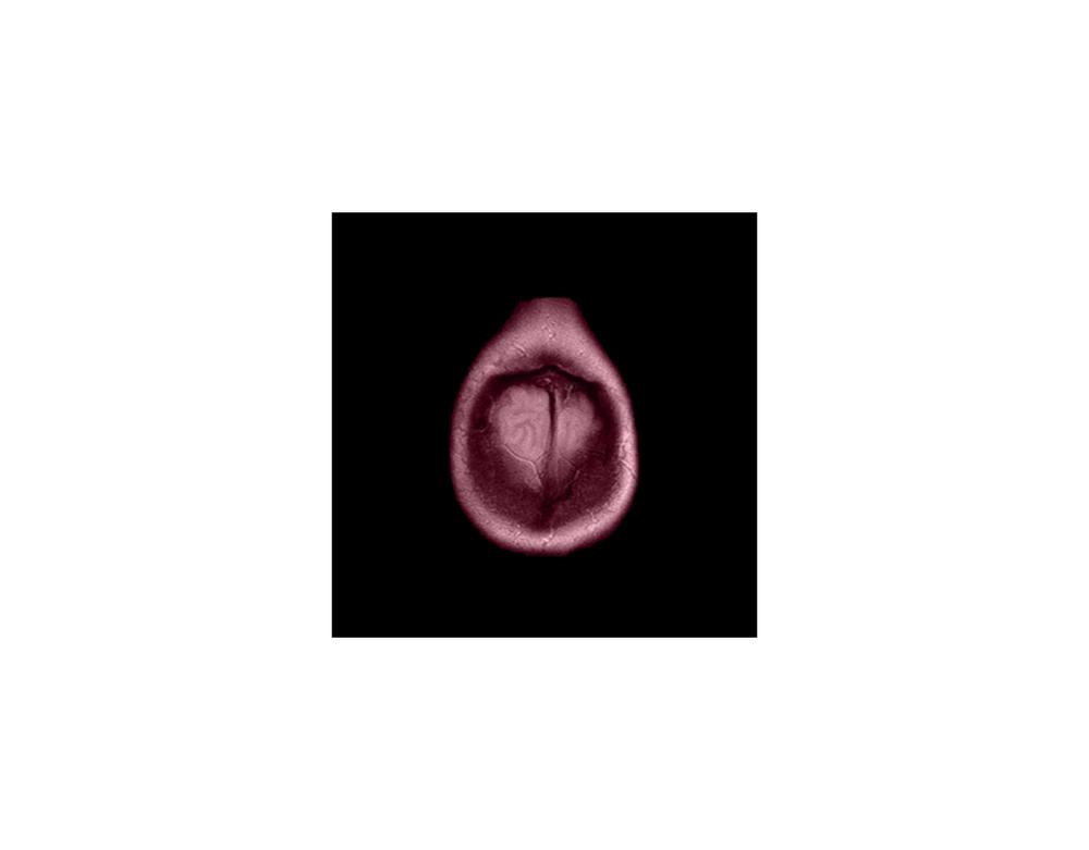 Murmur, brain MRI