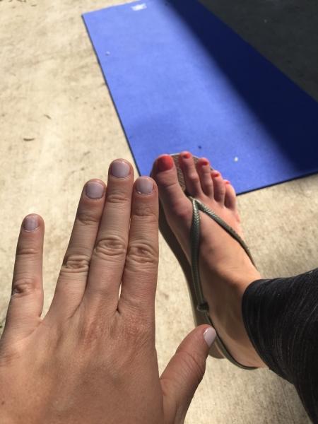 finger stubs