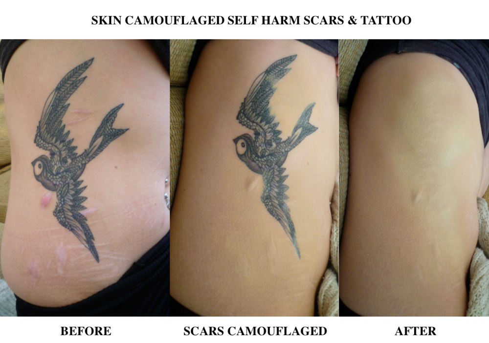 Skin camouflage aids self harm charlotte trendell for Tattoos over self harm scars pictures