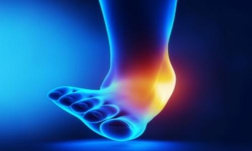 Ankle-Sprain-rs-300x257.jpg