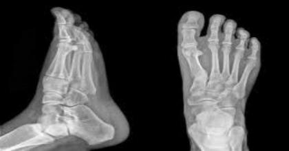 fracture.jpg