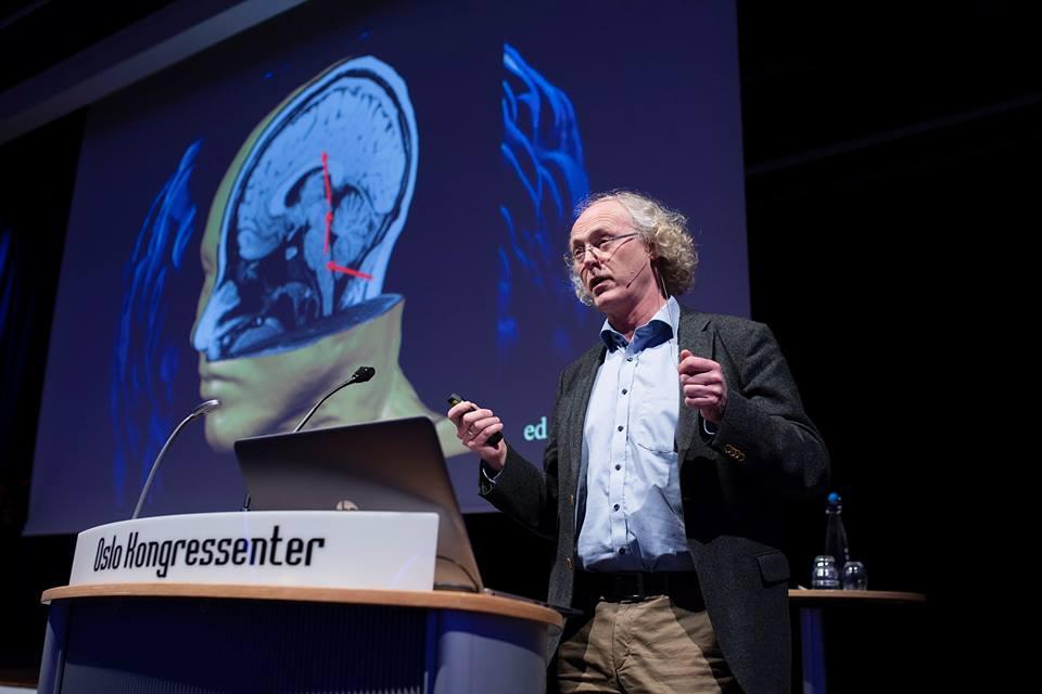 """Professor i nevrologi, Espen Dietrichs, holder det spennende foredraget """"Vår forunderlige hjerne."""" Foto: Christopher Olssøn."""