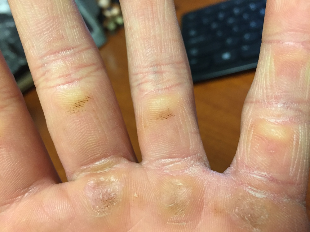 EWWWW, yeah, those are the calluses I deal with on my left hand.