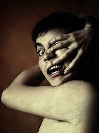 Alien hand disorder