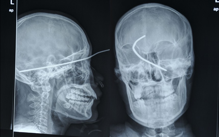 weird x-rays, worst x-rays. pictures of weird x-rays. strange x-rays, onlyanurse, only a nurse