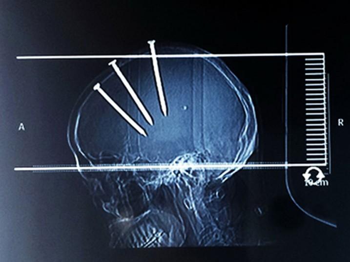 weird x-rays, strange x-rays, onlyanurse, nursing communities