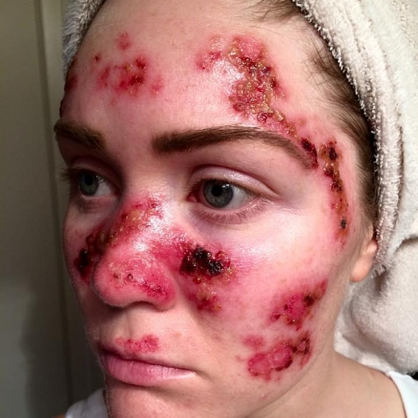 Viral picture of a nurse with skin cancer, falls on the heels of a recent study