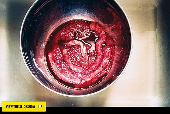Placenta110829_btn_560