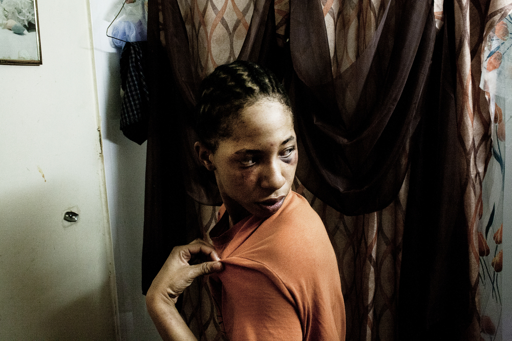 Targie Jackson examines her face in the mirror after the police raided her Aunt's home and allegedly battered Jackson, 2011.